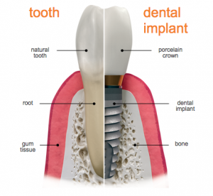 illustration comparing a real tooth and a dental implant and crown