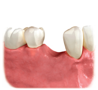 Image showing how a missing tooth not replaced may lead to bone loss