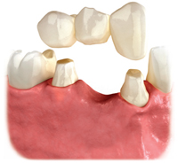 Option to replace a missing tooth using a bridge old bank house dental parctice leighton buzzard milton keynes