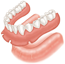 Illustration of a conventional denture not secured by implants