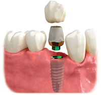 Image showing a dental implants used to replace a missing tooth
