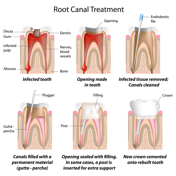 The stages of dental root canal treatment explained