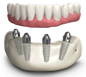all on 4 implants for permanent dentures