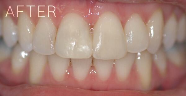 Teeth after invisalign orthodontics treatment