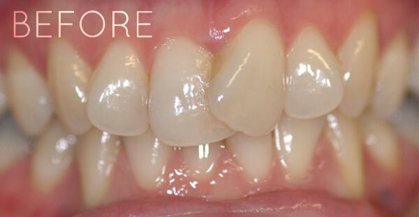 Teeth before invisalign orthodontics treatment