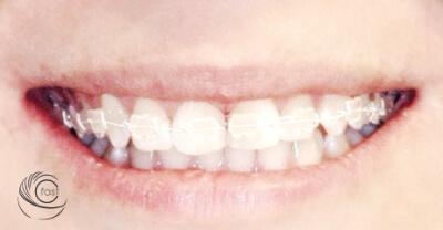 cosmetic braces for othodontics